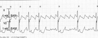 안민수 :Bradyarrhythmia Tachycardia-bradycardia syndrome Sinus pause=26sec In the transition between the tachycardia and the bradycardia, long pause caused by inappropriate suppression of the sinus node