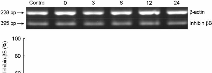 Figure 4. Electrophoretogram and its densitogram of RT-PCR products for inhibin-βb mrna in the control and γ-irradiated mouse ovaries.