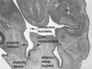 The oronasalmembrane was ruptured and the primitive choana