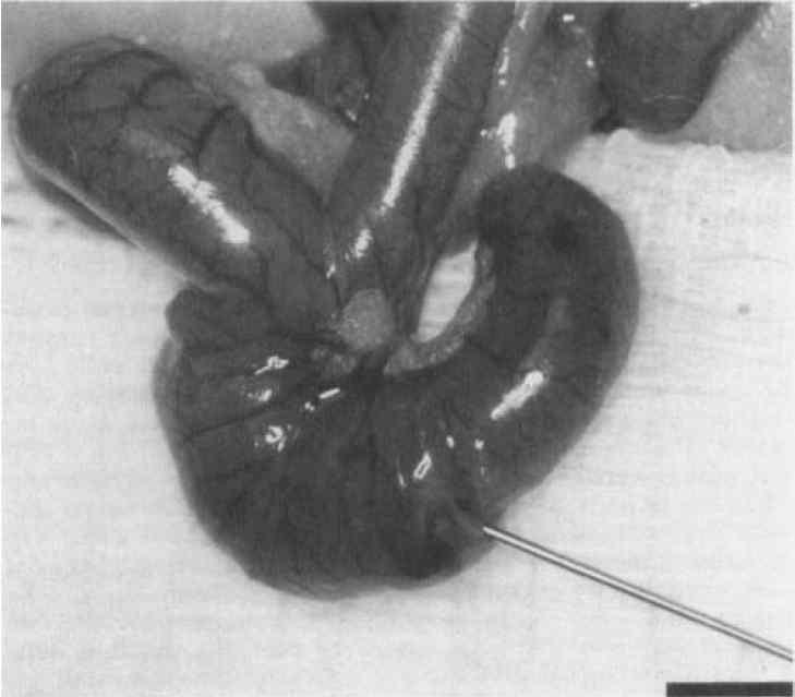 Injection of human colon cancer cells into the cecal wall of a