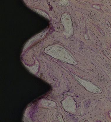 Fig. 7. A light micrograph of the experimental group taken 4 weeks after insertion of the implant (H-E staining; 100) A lattice of newly formed bone was approaching the implant from the bone. Fig. 8.