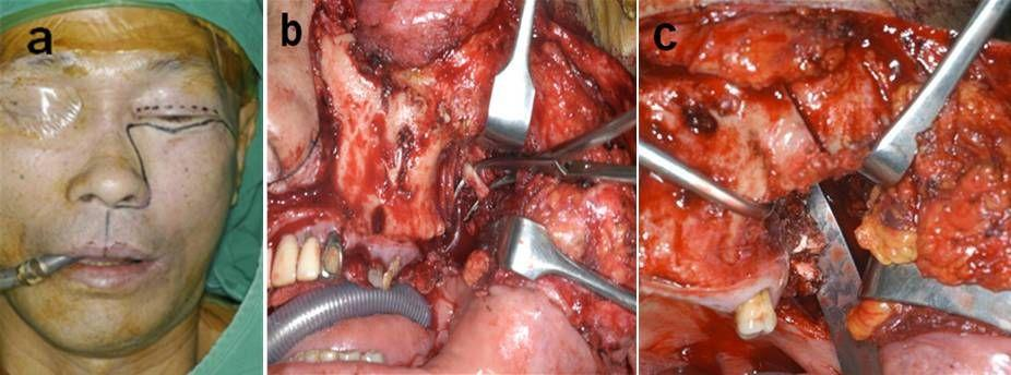 25 Surgical Management of Sinonasal Cancer Fig. 6. Intraoperative photograph of the radical maxillectomy with pterygoid extension (a) Lateral extension of lateral canthotomy incision.