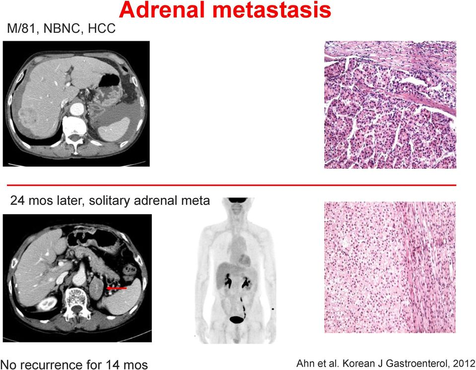 adrenal meta No recurrence for 14