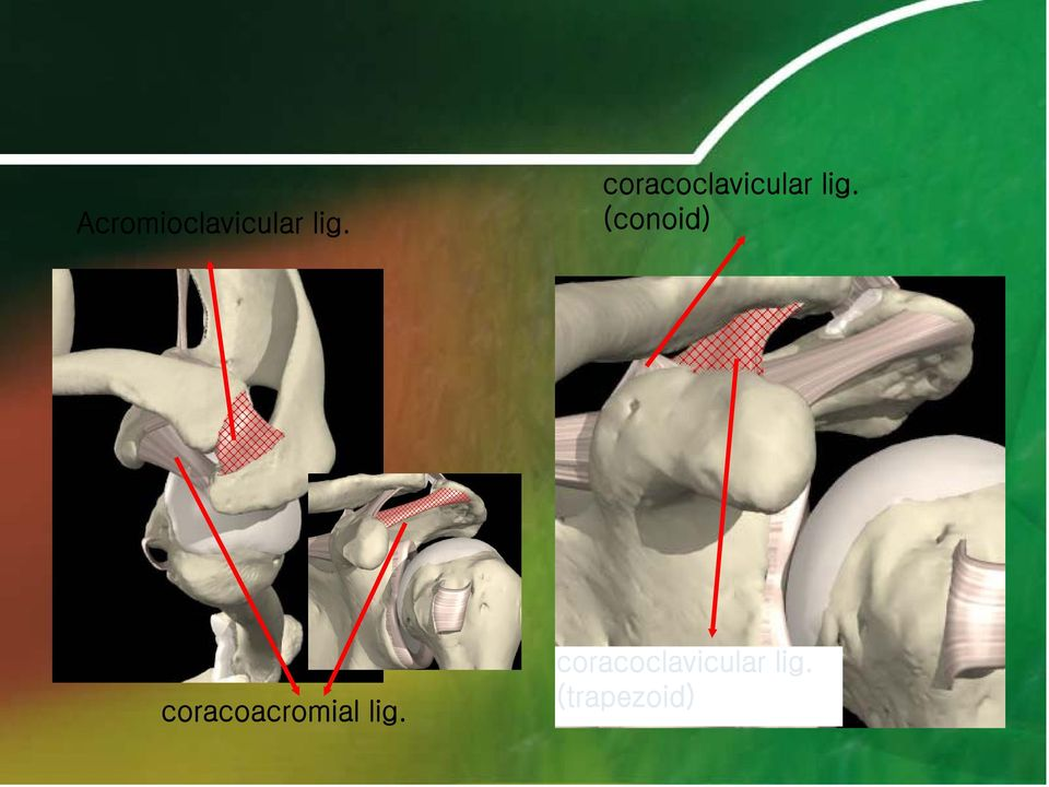 (conoid) coracoacromial