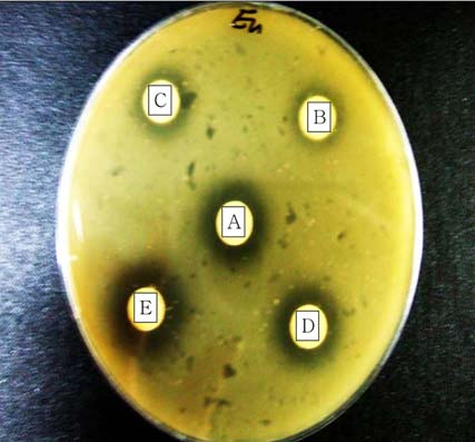 40 ND Bacterides fragilis 27.23±0.32 23.60±0.85 ND Clstridium perfingens 13.65±1.63 16.48±1.59 ND Clstridium difficile 15.85±2.05 14.40±2.