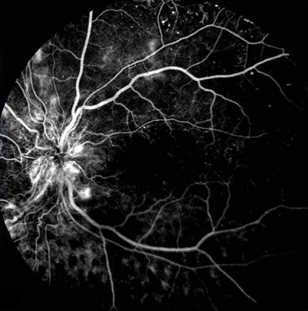 () Early phase fluorescein angiography shows the optic-disc leakage due to neovascularization. C D Figure 2.