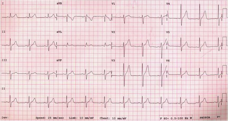 The twelve-lead ECG on admission: marked ST segment elevations were noted on the right precordial leads (V1-V4) and