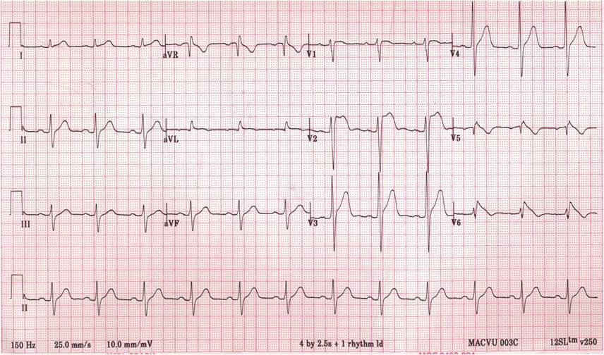electrocardiaram(ecg) showed normal (), and after 5