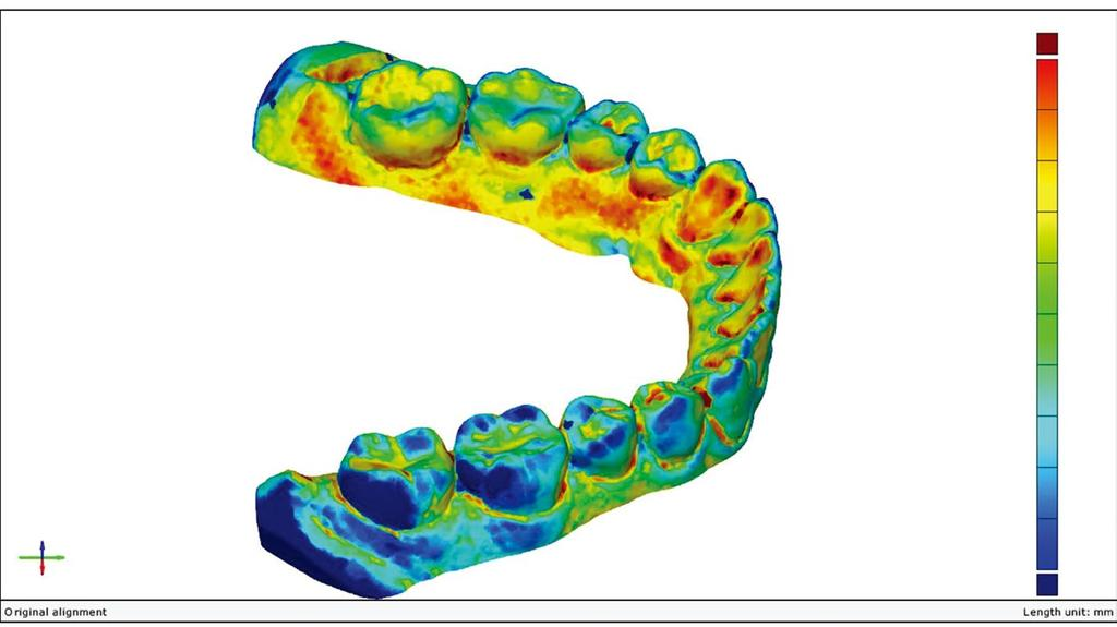 Three-dimensional deviations etween test and reference STL file. Generated following prealignment y Gom inspect softwa re. Color-coded scale shows discrepancy of superimposition (mm). Tale 1.