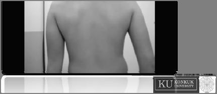 migration of scapula Type 4 (=Normal) no prominence of inferior angle or