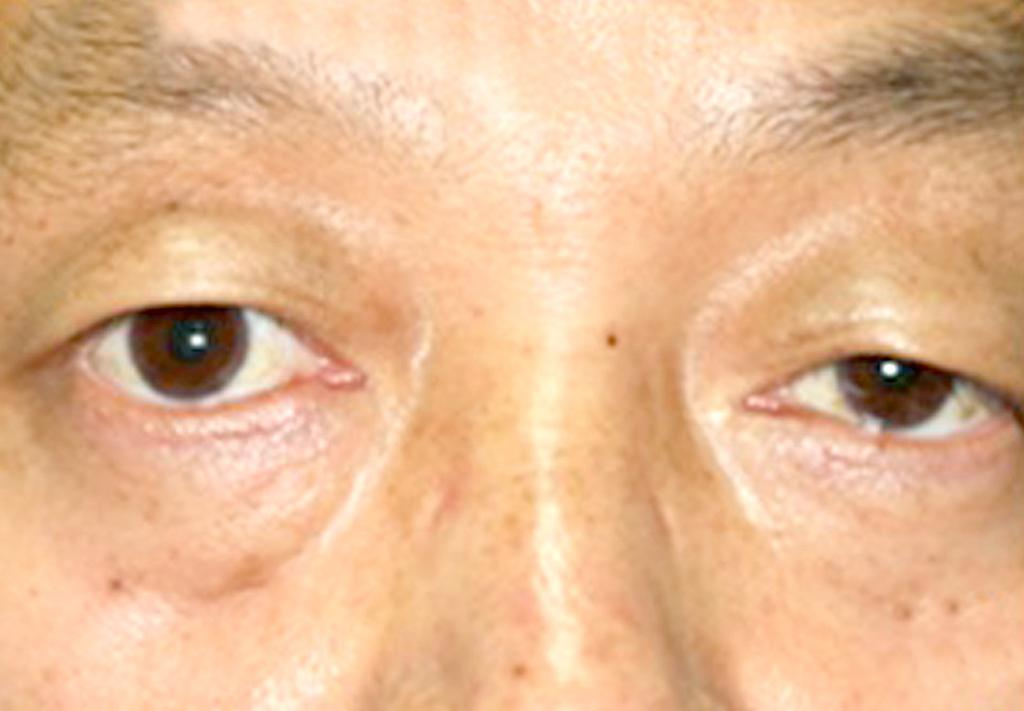 Down and lateral gaze limitation of right eye is prominent (A, B).