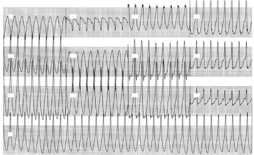 revealed positive QRS in the precordial and inferior leads.
