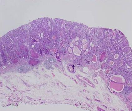 (B) Endoscopic resection was done, (C) and post-resection biopsy revealed adenocarcinoma with submucosal invasion (H&E stain, 200). Table 1.