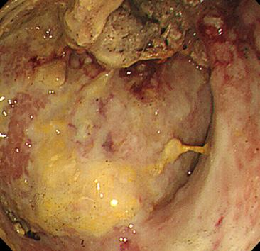 (A) On the 27th admission day, endoscopic necrosectomy was started (endoscopic and