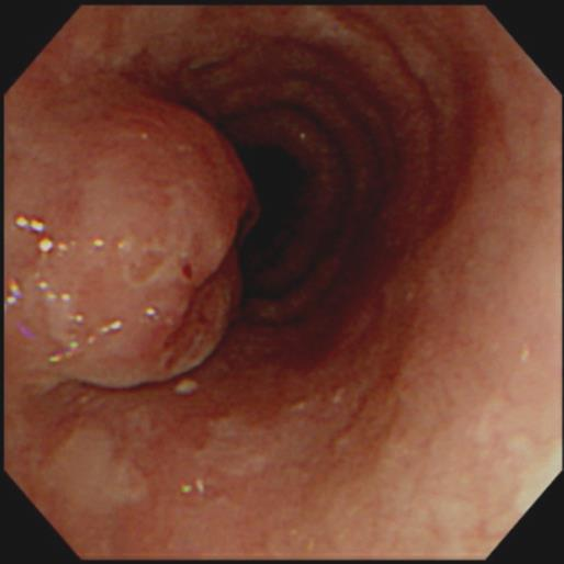 Esophageal cancer s/p STG for EGC (M/70) 2002. 5. 20. Subtotal gastrectomy Adenocarcinoma (W/D), intestinal type 1.6x1.