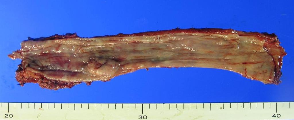 Esophageal cancer after surgery for EGC Invasive squamous