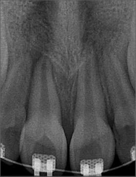 loss for eruption of upper right centrl incisor, () showing open root