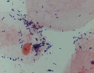 직접검사법 : Microscopy and stain Gram stain