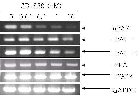 Figure 7.Efects ofzd1839 on the transcriptionallevelofmmp-2 and MMP-9. A.YD-10B celsweretreatedwith ZD1839attheconcentration of0,0.01, 0.