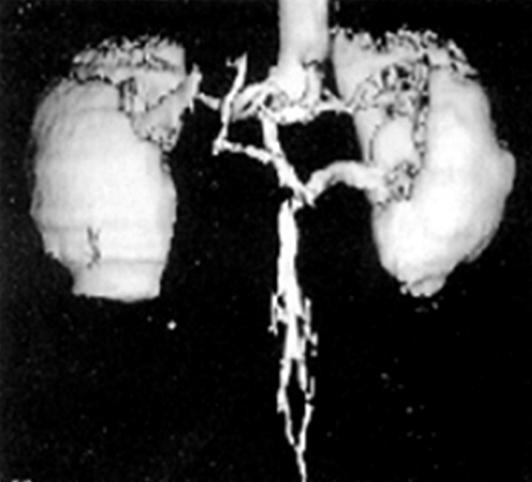 (A) The computed tomography scan of patient 7 shows the retroaortic left