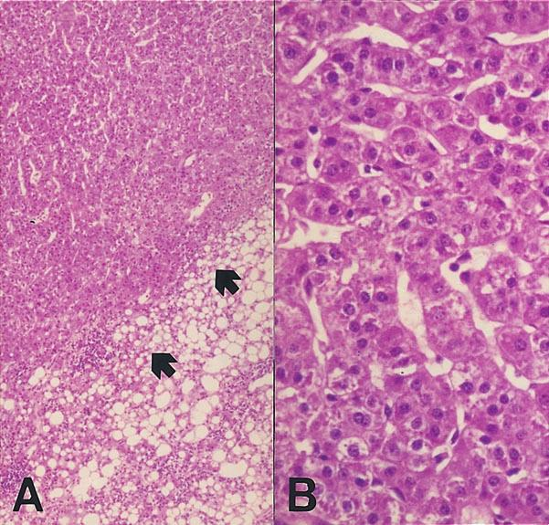 390 6 3 2000 Figure 4. Microscopic feature of well differentiated hepatocellular carcinoma (HCC) in dysplastic nodule. A. Low power view show ing subnodule of increased cell density (arrows). B.