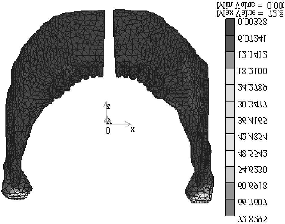 Von Mises stress contour of experimental group 1 (lingual view). pole 의후상방변위가관찰되었다.